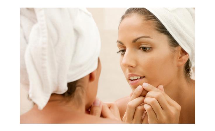 البثور حول فكّ الفم، ما هي أسبابها وكيف تعالجينها؟