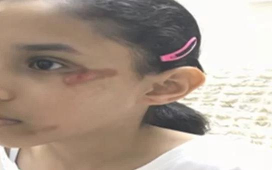 بالفيديو ولي امر طالبة يتهم مدرسة في السعودية بالتقصير لاصابة ابنته في وجهها