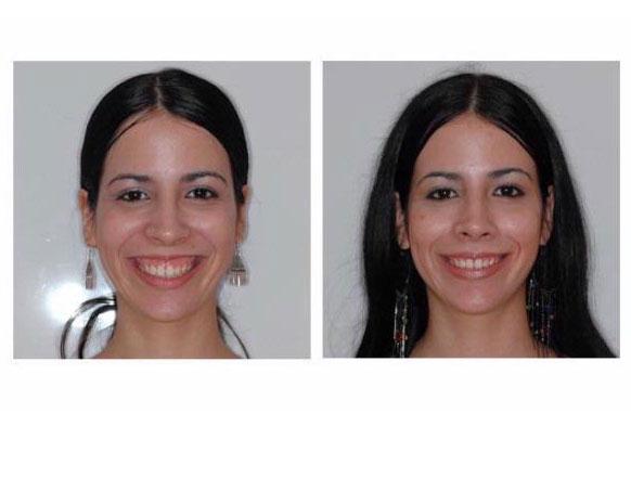 د. محسن قلعجي: هذه نصائحنا لتتخلّصي من الابتسامة اللثوية