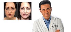 """""""نواعم"""" تلتقي د. سيمون أوريان في بيفرلي هيلز للتعرّف إلى علاج Cool Laser"""